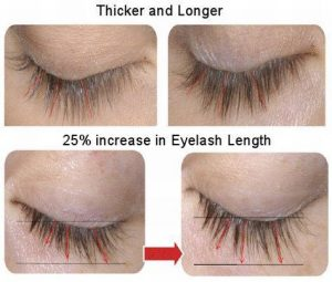 best eyelash growth